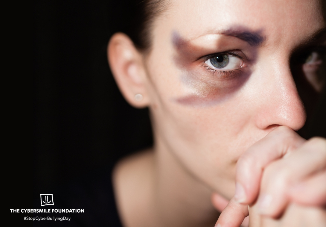 An advertising concept for Stop Cyber Bullying Day - social media black eye